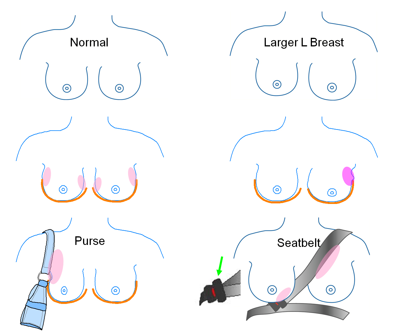 Tell me what to expect when examining my breasts - Kevin Kelly MD ...